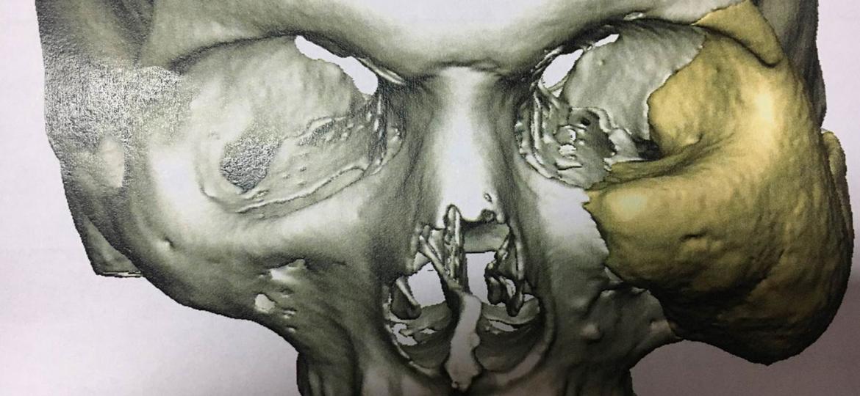 implant-10