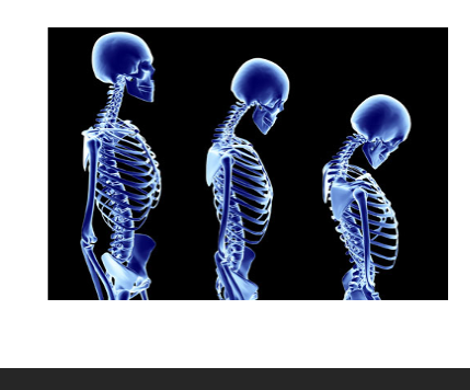 osteoporoza 2